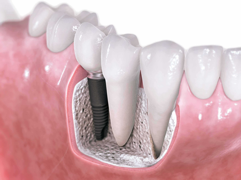 Что делать, если выдвинулся зуб? Об